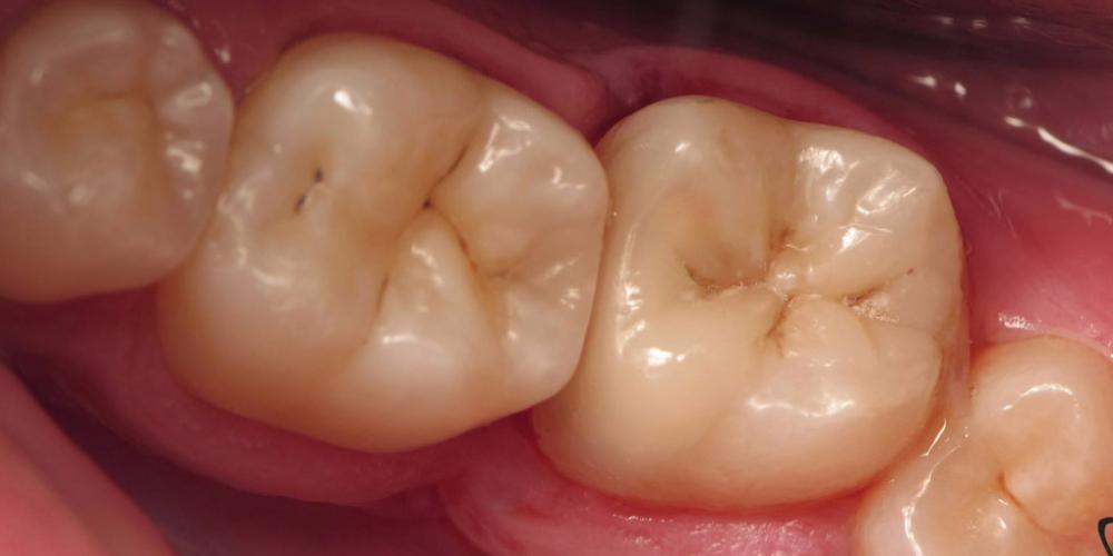 Непрямая композитная реставрация жевательного зуба