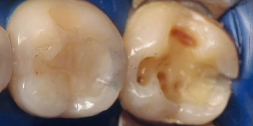 Фото после препарирования. Лечение кариеса зуба, восстановления анатомии зуба композитным материалом