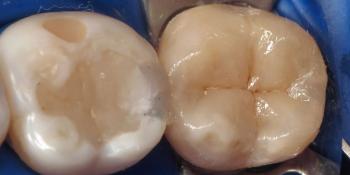 Лечение кариеса зуба, восстановления анатомии зуба композитным материалом фото после лечения