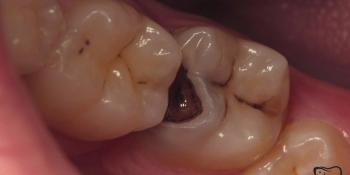 Непрямая композитная реставрация жевательного зуба фото до лечения